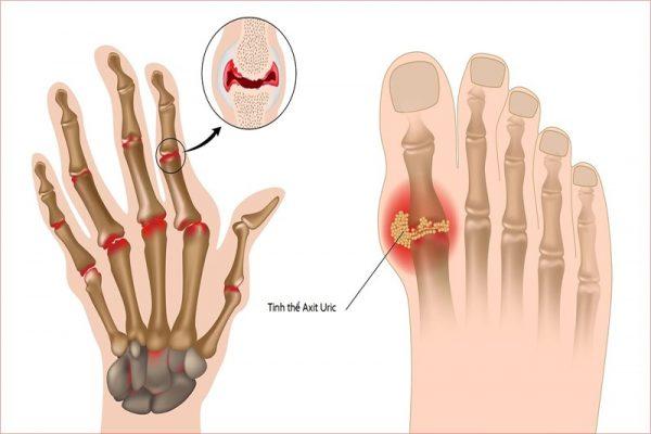 Bệnh gout có chữa dứt điểm được không?