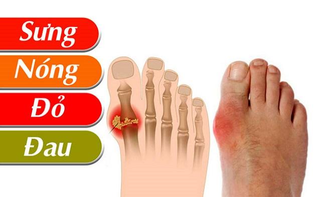 Bệnh gout thường gặp ở những người ăn uống, sinh hoạt không lành mạnh
