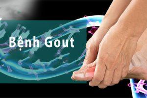 Gút – căn bệnh xương khớp ngày càng trở nên phổ biến