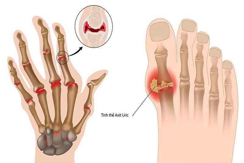 Đặc trưng của căn bệnh gout là phần chân khớp thường bị viêm sưng