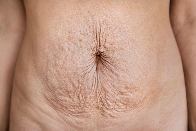 Lớp cơ ngoài bị phá vỡ gây nên tình trạng bụng thừa sau sinh