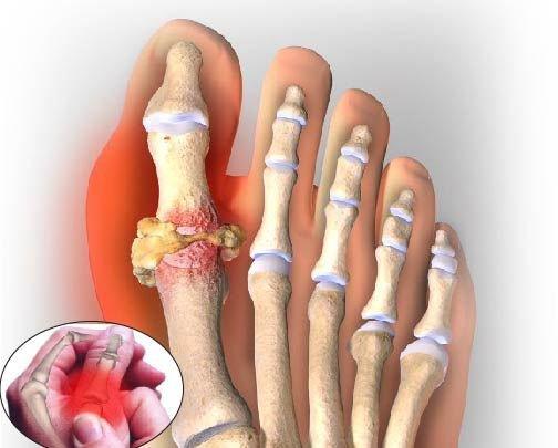 Nên dùng duy trì từ 2 – 3 hộp để ngăn ngừa bệnh gout tái phát trở lại