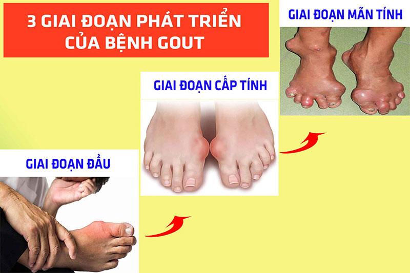 Bệnh gout có thể gây ra rất nhiều biến chứng nguy hiểm