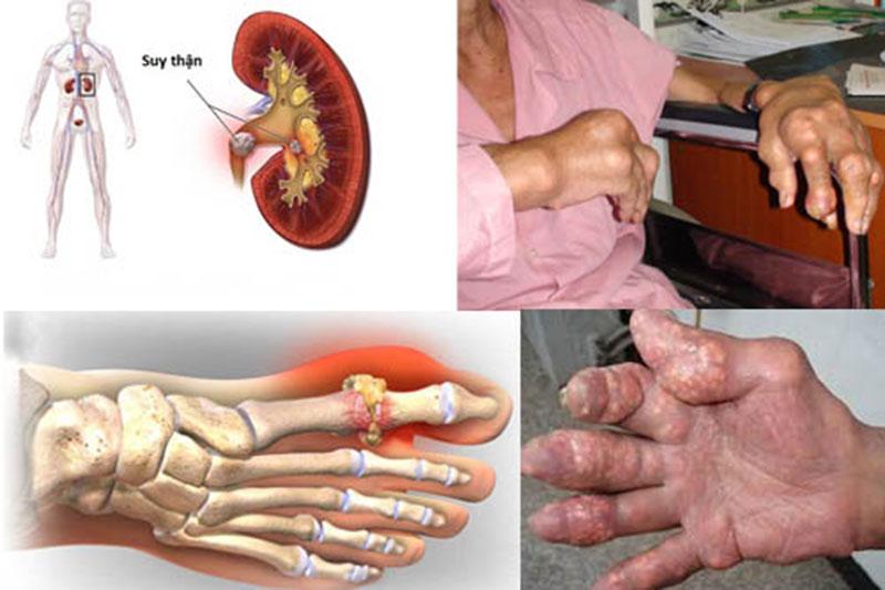 Bệnh gút khi không được điều trị kịp thời sẽ gây ra rất nhiều biến chứng nguy hiểm
