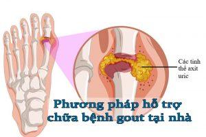[Góc chia sẻ] 7 phương pháp hỗ trợ chữa bệnh gout tại nhà