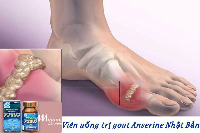 Viên uống trị gout Anserine Minami nổi tiếng của Nhật Bản